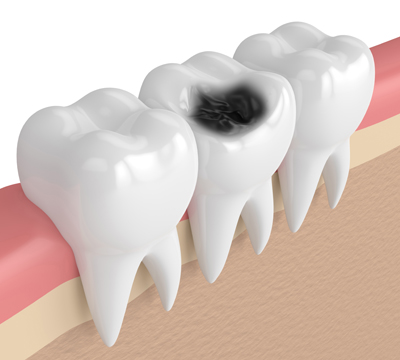 Kết quả hình ảnh cho Tooth pulp pain or tooth decay the teeth