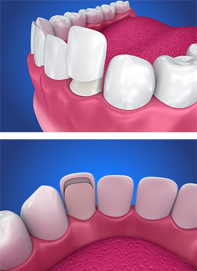 Veneers | Oral Health Foundation