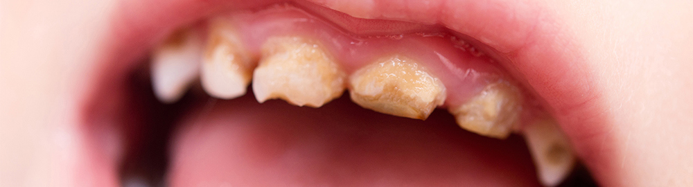 New statistics on childhood tooth decay suggest concerning lack of progress