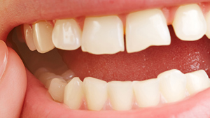 chipped tooth filling cost uk