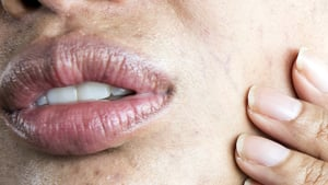 How To Spot Mouth Cancer Oral Health Foundation